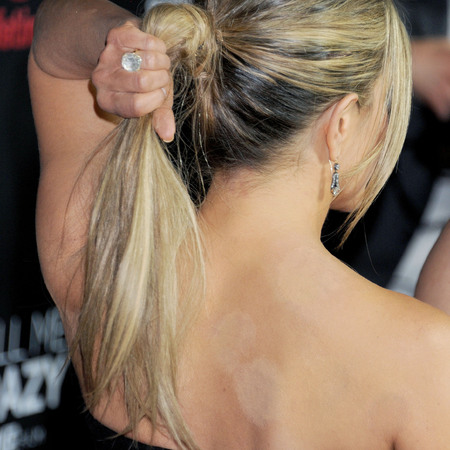 Jennifer Aniston shows cupping marks