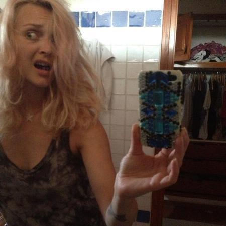 Fearne Cotton hair loss snap