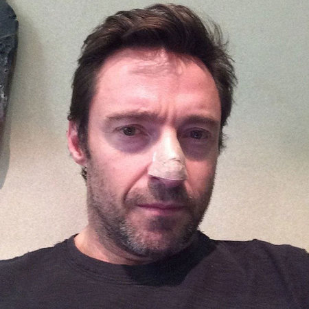Hugh Jackman skin cancer on his nose - Celebrity cancer scares - handbag.com