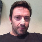 Hugh Jackman's cancer scare